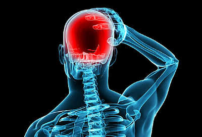 493x335_glossary_headaches_slideshow.jpg